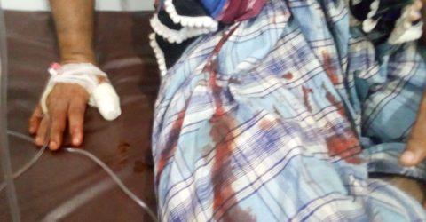লোহাগাড়ায় সন্ত্রাসী হামলায় দুইজন আহত